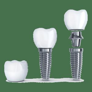 Dental Implants Tacoma