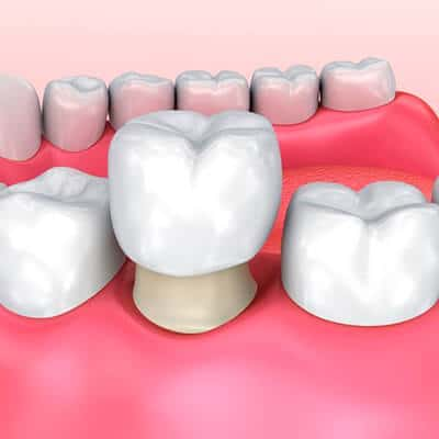 Dental Crowns - Tacoma Dentist