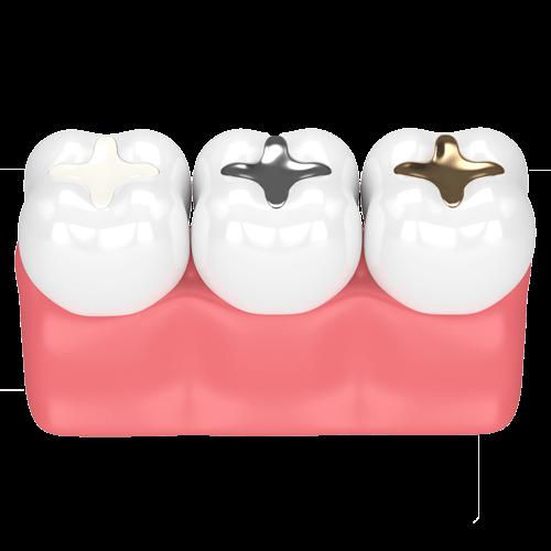 Dental Tooth Filling