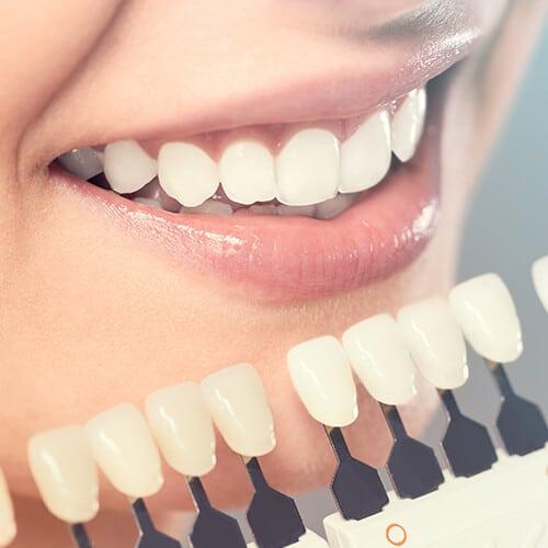 Teeth Whitening - Tacoma Dentist